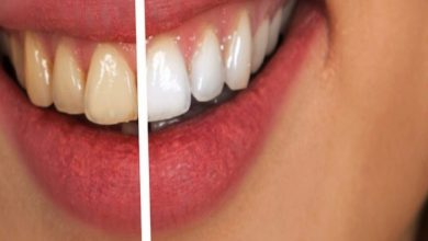 Photo of Are There Any Contraindications For Teeth Whitening?