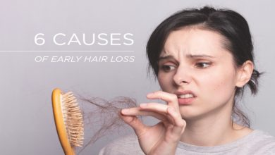 Photo of Understanding the Causes of Hair Loss