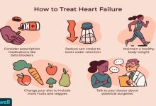 Photo of How to Survive Heart Failure? Essential Things You Should Know